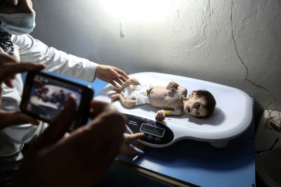 Une infirmière porte une petite fille syrienne souffrant de malnutrition aiguë, le 21 octobre 2017 dans un hôpital de la Ghouta orientale Photo Amer ALMOHIBANY. AFP
