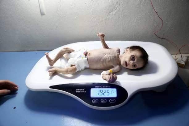 Enfants affamés de la Ghouta Est en Syrie
